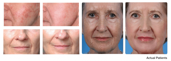 before after skin tightening